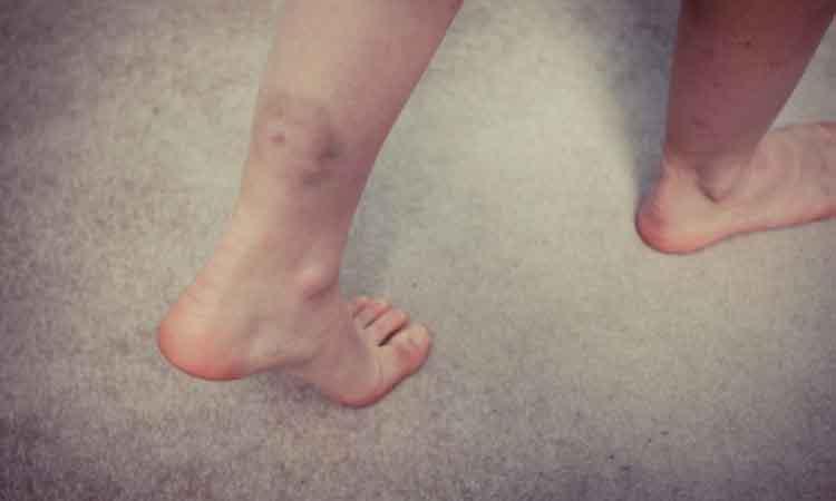 Οι 6 άγνωστες αιτίες που προκαλούν… μελανιές