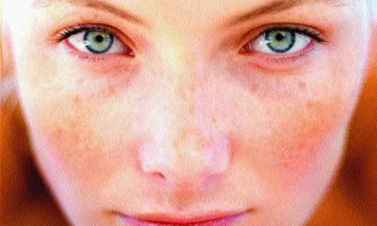 Πώς να διώξετε τις κόκκινες κηλίδες από το δέρμα