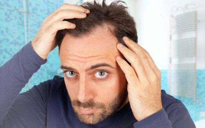 Απώλεια μαλλιών: Οι 5 βιταμίνες που θα σας σώσουν