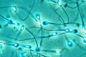 Η αρρενωπότητα επηρεάζει την ποιότητα του σπέρματος