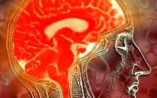 Νέα ανακάλυψη «ξεκλειδώνει» τη θεραπεία των εγκεφαλικών