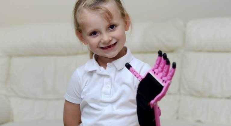 Πεντάχρονη έχει χέρι από... 3D εκτυπωτή