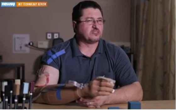 Τεχνητό χέρι με αίσθηση αφής