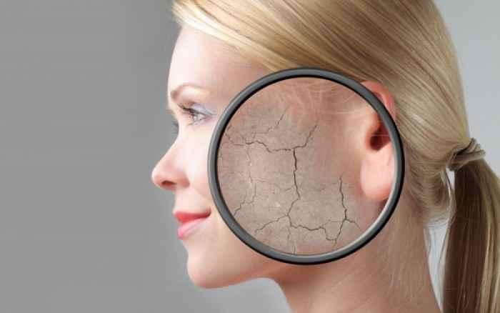 Πώς μπορείτε να διορθώσετε το ξηρό δέρμα