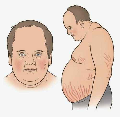 Αύξηση βάρους, διαβήτης, υπέρταση και εύκολη κόπωση ενδέχεται να συνδέονται με νόσο, σύνδρομο Cushing (Cushing's syndrome)
