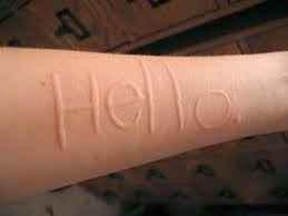 Γράφετε πάνω στο δέρμα σας, ασκώντας πίεση; Τι είναι ο δερμογραφισμός και πως αντιμετωπίζεται - Factitious urticaria (dermographism)