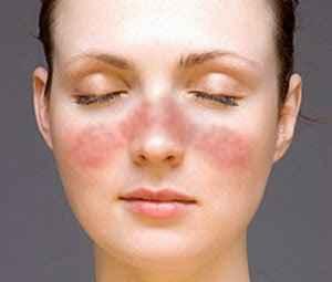 Εξάνθημα περίεργο και ανεξήγητο στο πρόσωπο, συνεχή πυρετό, επίμονο πόνο ή κούραση προκαλεί ο Συστηματικός Ερυθηματώδης Λύκος. Η σημασία της άσκησης και της δίαιτας (Systemic Lupus Erythematosus).