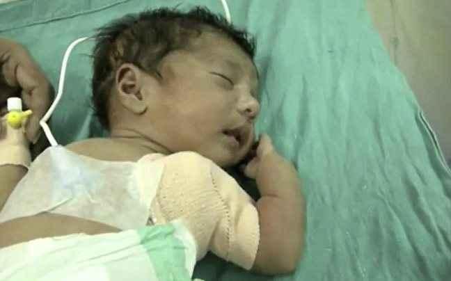 Μωρό με τρία χέρια γεννήθηκε στην Ινδία