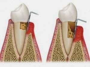 Πότε και πώς οι ρίζες των δοντιών προσβάλλονται από τερηδόνα