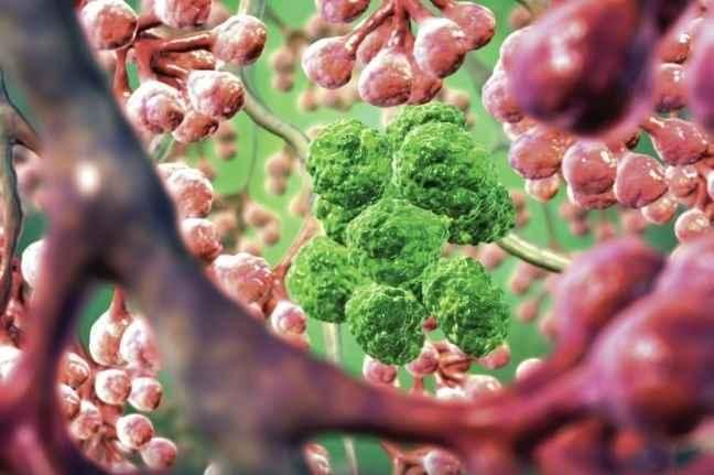 «Ο καρκίνος πιο συχνά οφείλεται σε κακή τύχη παρά σε γενετικές αιτίες»