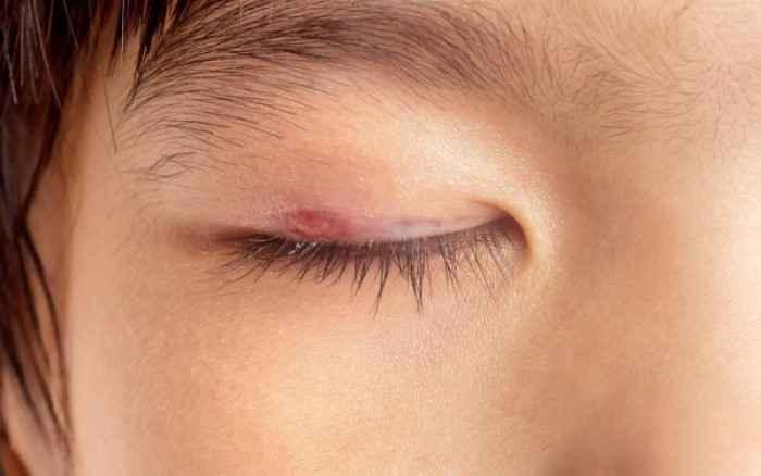 Κριθαράκι στο μάτι Αίτια, πρόληψη & αντιμετώπιση