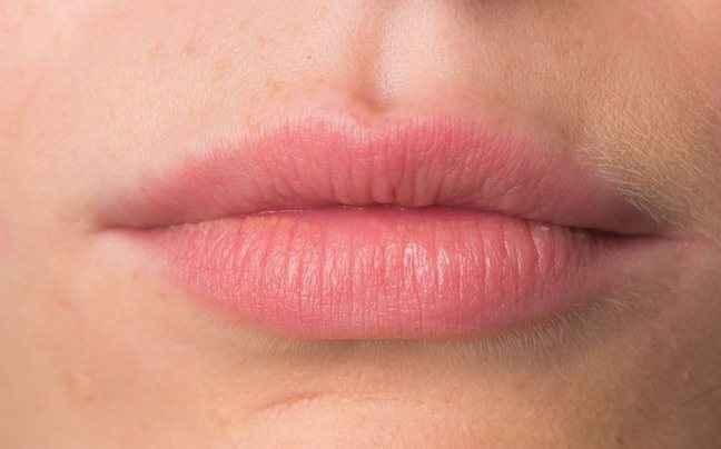 Πώς να απαλύνετε τα σκασμένα χείλη