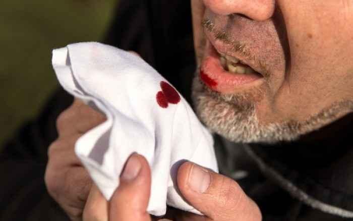Αιμόπτυση: Πιθανές αιτίες – Πότε πρέπει να ανησυχήσετε