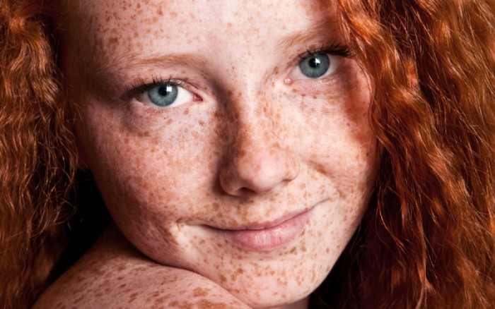 Πανάδες στο πρόσωπο: Πώς θα τις αντιμετωπίσετε