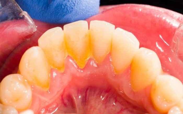 Πλάκα στα δόντια: Πώς θα την απομακρύνετε
