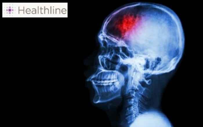 «Μίνι» εγκεφαλικό: Μάθετε τα συμπτώματα!
