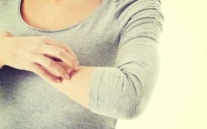 Ξηρό δέρμα και φαγούρα: 3 λύσεις θα σας ανακουφίσουν