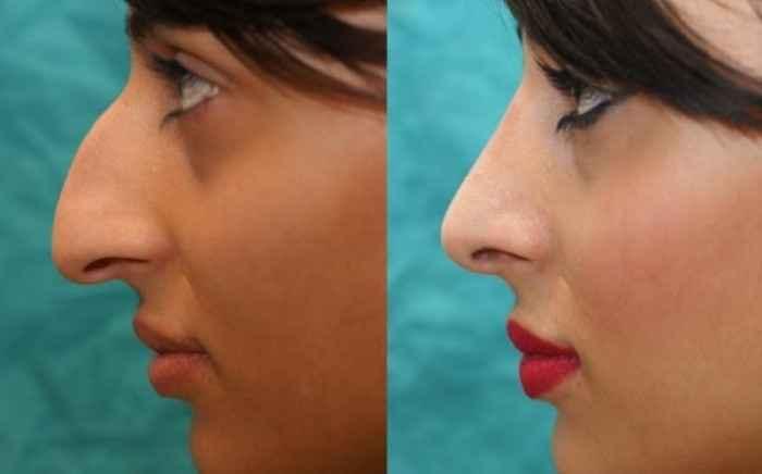 Ρινοπλαστική: Όμορφη μύτη, ελεύθερη αναπνοή
