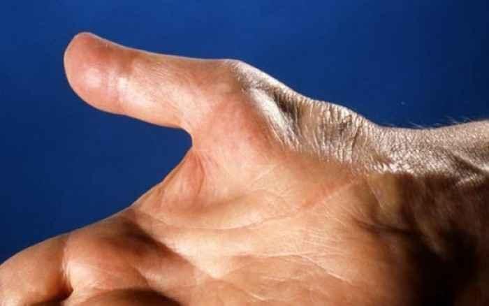 Σύνδρομο καρπιαίου σωλήνα: Ποια είναι τα συμπτώματα