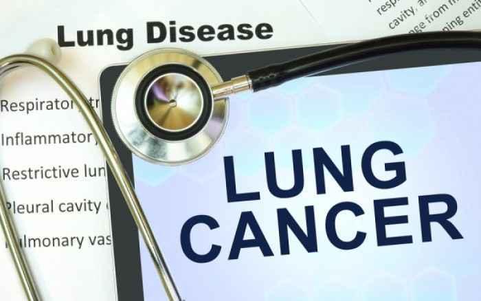 Καρκίνος Πνεύμονα: Λανθασμένες αντιλήψεις και ελλιπής γνώση από τον πληθυσμό, σύμφωνα με έρευνα