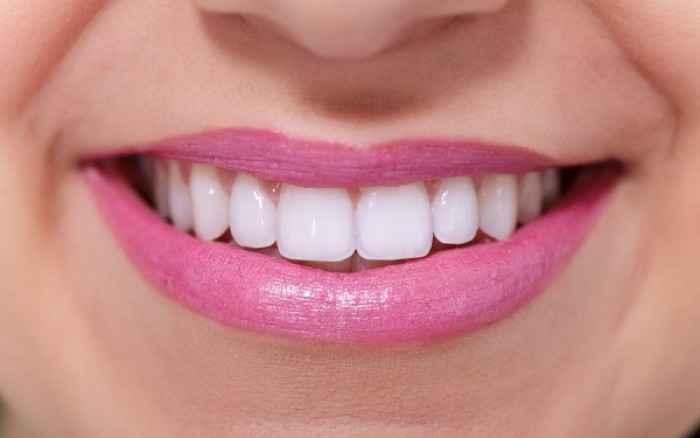 Λεύκανση δοντιών: Όσα πρέπει να ξέρετε πριν το αποφασίσετε