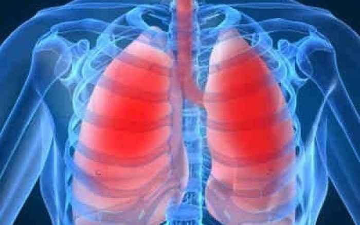 Πνευμονική Υπέρταση: Μακροπρόθεσμα αποτελέσματα σε σκεύασμα της Actelion
