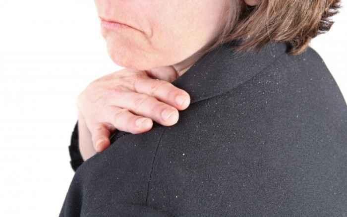 Σμηγματορροΐκή δερματίτιδα: Πώς θα απαλλαχθείτε από τις άσπρες νιφάδες