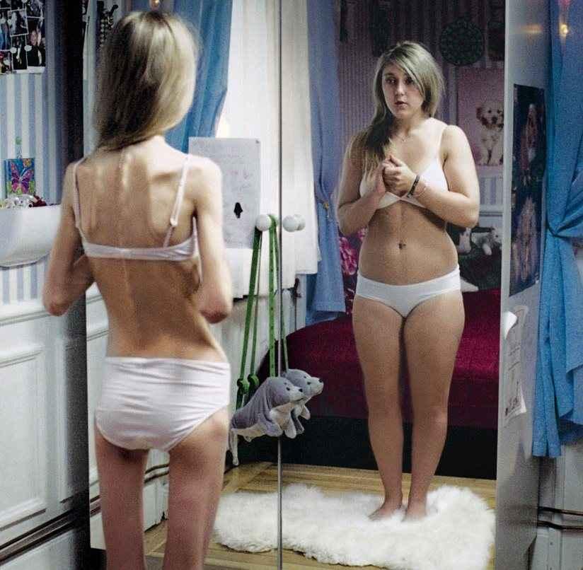 Ανακαλύφθηκε το γονίδιο των διατροφικών διαταραχών