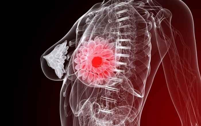 Καρκίνος του μαστού: Είναι δυνατό να ανασταλεί η εξάπλωσή του στα οστά