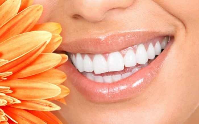 Λεύκανση δοντιών: Δείτε με ποιες μεθόδους γίνεται