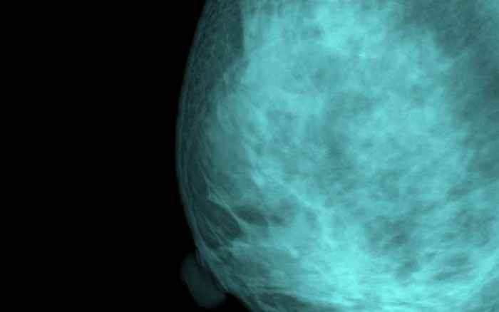Πυκνότητα μαστών: Δεν αναλογεί πάντα στον κίνδυνο καρκίνου του μαστού