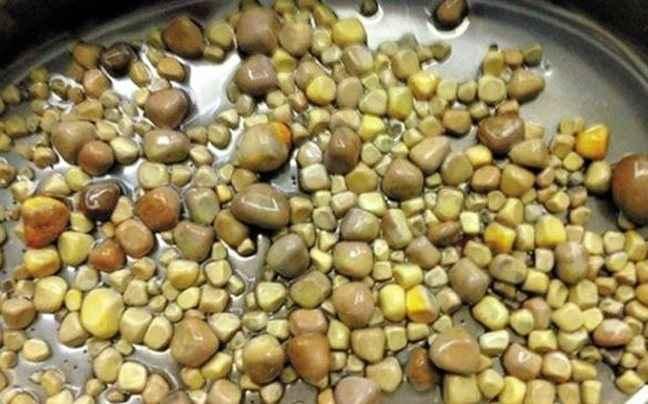 Γιατροί αφαίρεσαν 420 πέτρες από τα νεφρά ασθενή