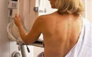 Η μαστογραφία μειώνει τον κίνδυνο καρκίνου του μαστού