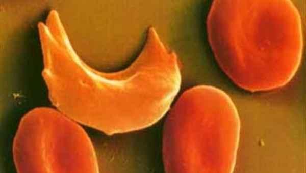 Μάθετε την δρεπανοκυτταρική νόσο