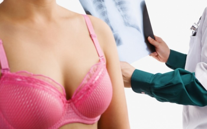 Νέο τεστ θα προβλέπει το ενδεχόμενο υποτροπής του καρκίνου του μαστού
