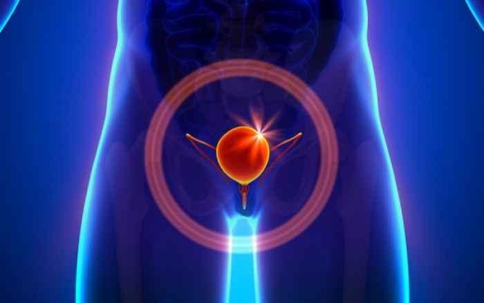 Συχνά επεισόδια κυστίτιδας; Δείτε πού οφείλονται