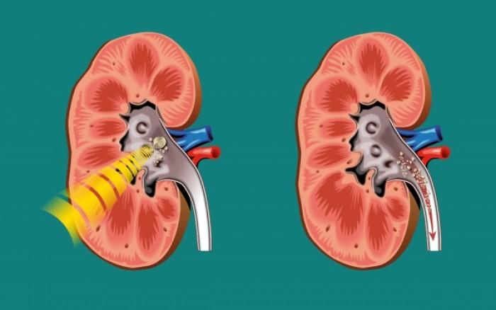 Ενδοσκοπική νεφρολιθοτριψία: Όταν το laser χτυπά τις πέτρες στα νεφρά με αποτέλεσμα