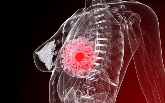 Καρκίνος μαστού: Η αφαίρεση περισσότερου ιστού μειώνει τον κίνδυνο δεύτερης επέμβασης