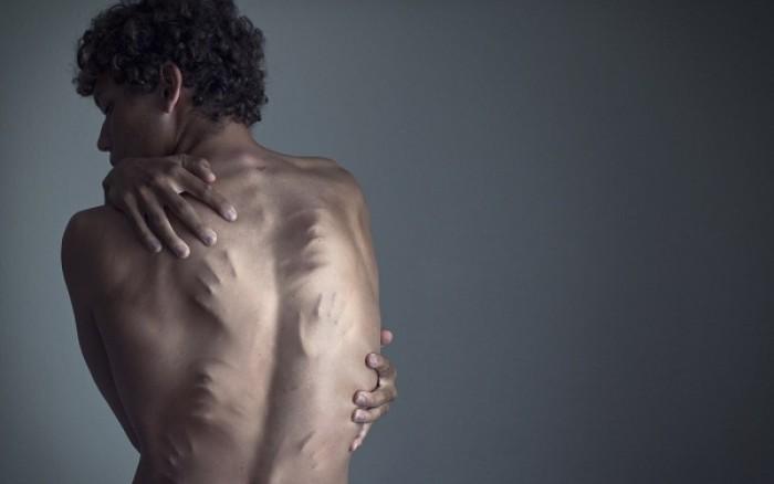 Οι δαίμονες της κατάθλιψης μέσα από 20 σκληρές φωτογραφίες