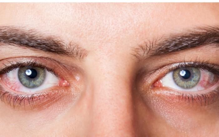 Γιατί κοκκινίζουν τα μάτια όταν είμαστε κουρασμένοι;