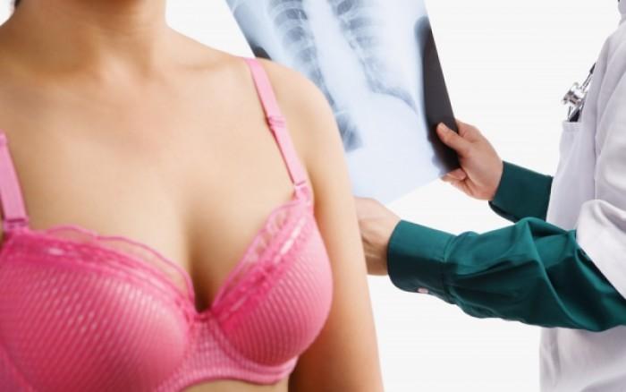 Ελαττωματικά γονίδια BRCA: Πόσο αυξάνουν τις πιθανότητες εκδήλωσης καρκίνου