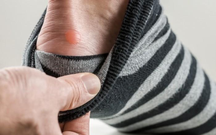 Φουσκάλες στα πόδια: Πρέπει να τις ανοίγουμε ή όχι;