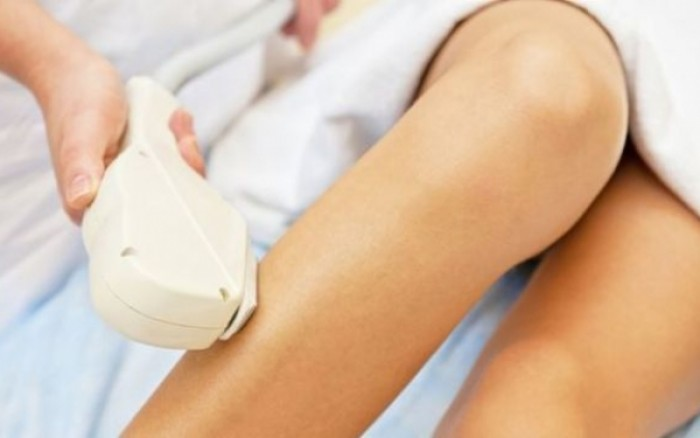 Είναι ασφαλής η αποτρίχωση με laser στην εγκυμοσύνη;