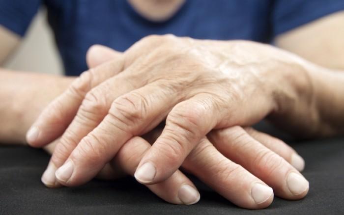 Ουρική αρθρίτιδα: Φυσικοί τρόποι για να απαλλαγείς
