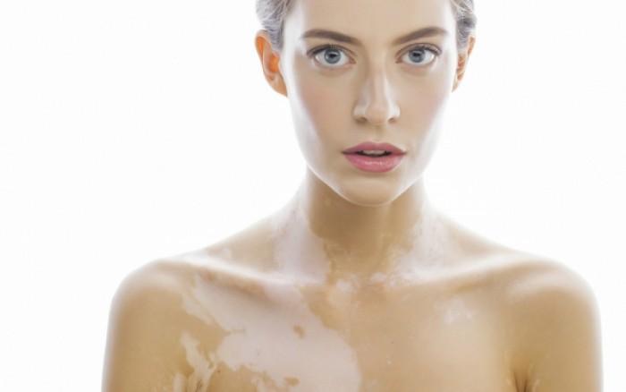 Λεύκη: Γιατί δημιουργούνται λευκές κηλίδες στο δέρμα