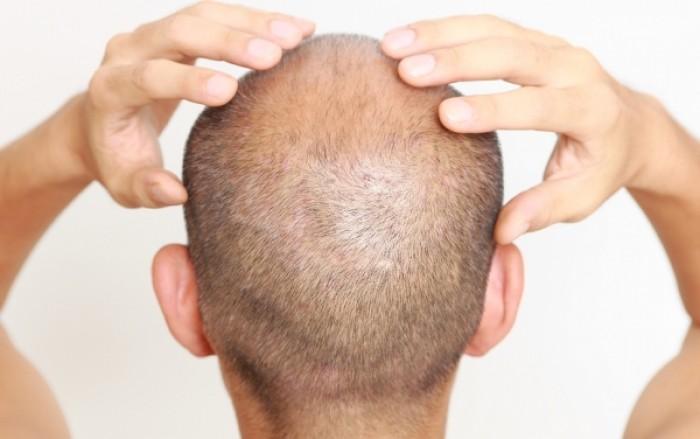 Γυροειδής αλωπεκία: Όταν η απώλεια μαλλιών οφείλεται σε αυτοάνοσο - Ποιες λύσεις υπάρχουν