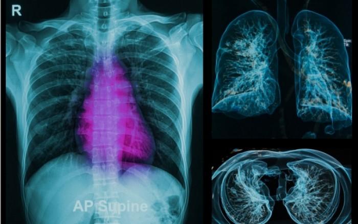 Εξετάσεις με ακτινοβολία: Πόσο αυξάνονται οι πιθανότητες καρκίνου