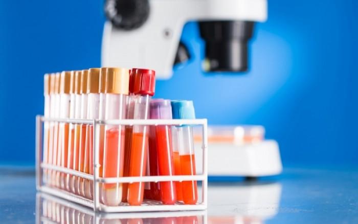 Με ποιους τρόπους γίνεται η μέτρηση του σακχάρου στο αίμα