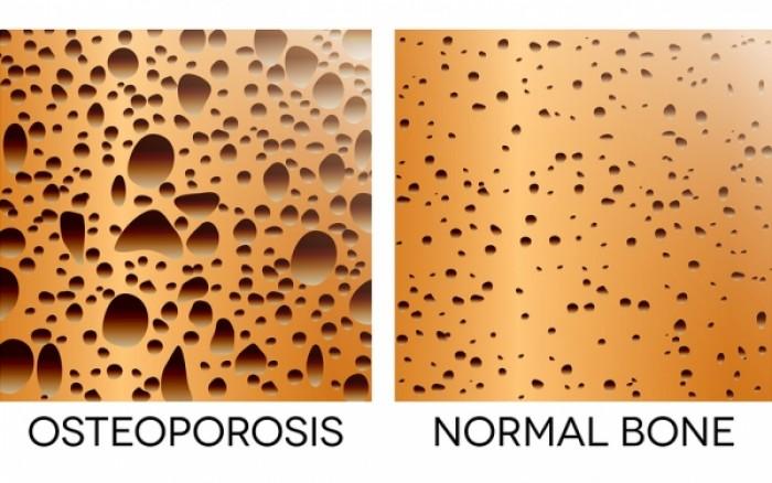 Οστεοπόρωση: Πόσο ασβέστιο χρειάζεστε καθημερινά για να την προλάβετε