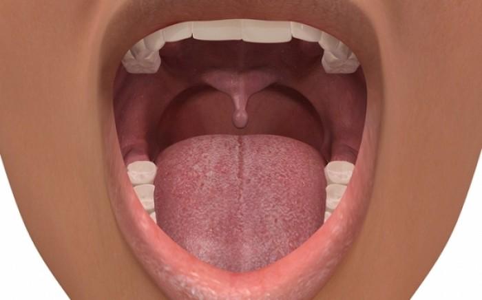 Σιαλολιθίαση: Η επίπονη πάθηση του στόματος - Ποια είναι τα συμπτώματα